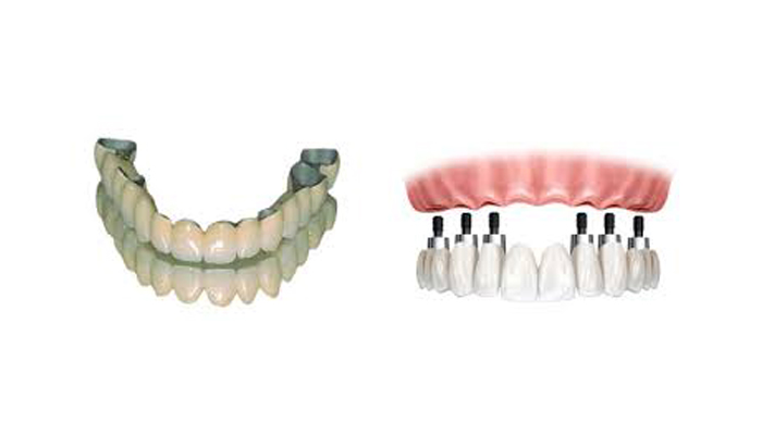 Prostodoncia  Rehabilitación Dental, Protesis