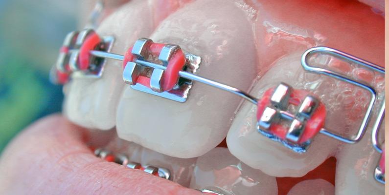 Ortodoncia Correctores para Dientes Desviados